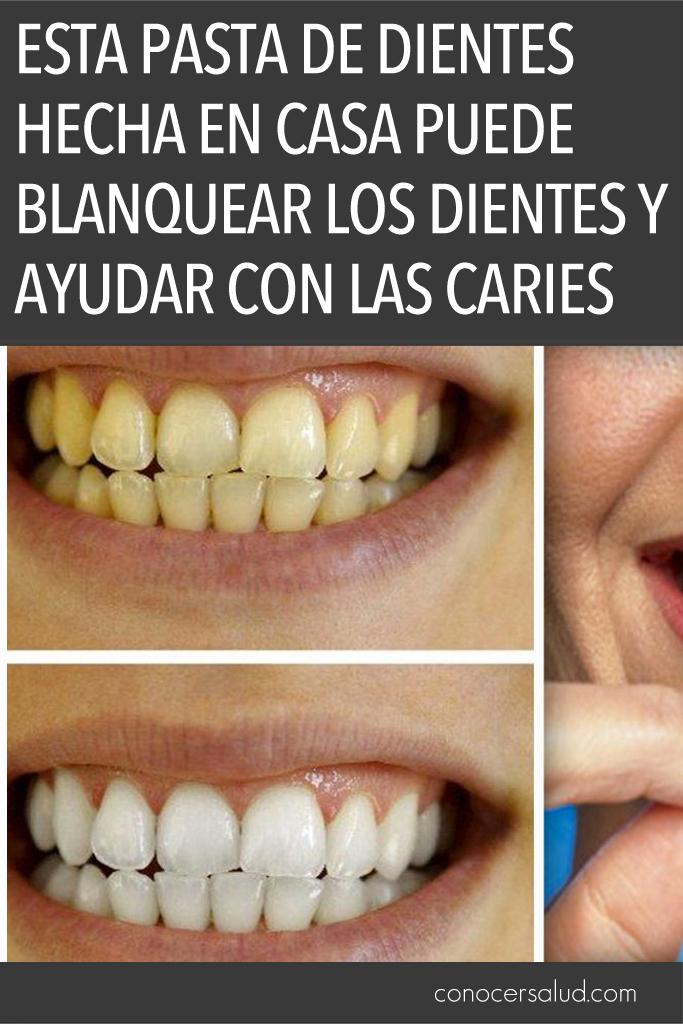 Esta pasta de dientes hecha en casa puede blanquear los dientes y ayudar con las caries - Como blanquear los dientes en casa ...
