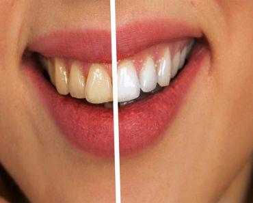 Blanquee sus dientes naturalmente con esta receta de pasta de dientes de cúrcuma