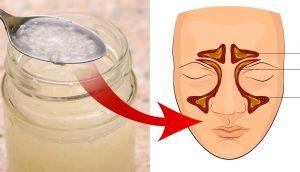 10 Remedios caseros para las infecciones de los senos paranasales: Alivie la sinusitis naturalmente