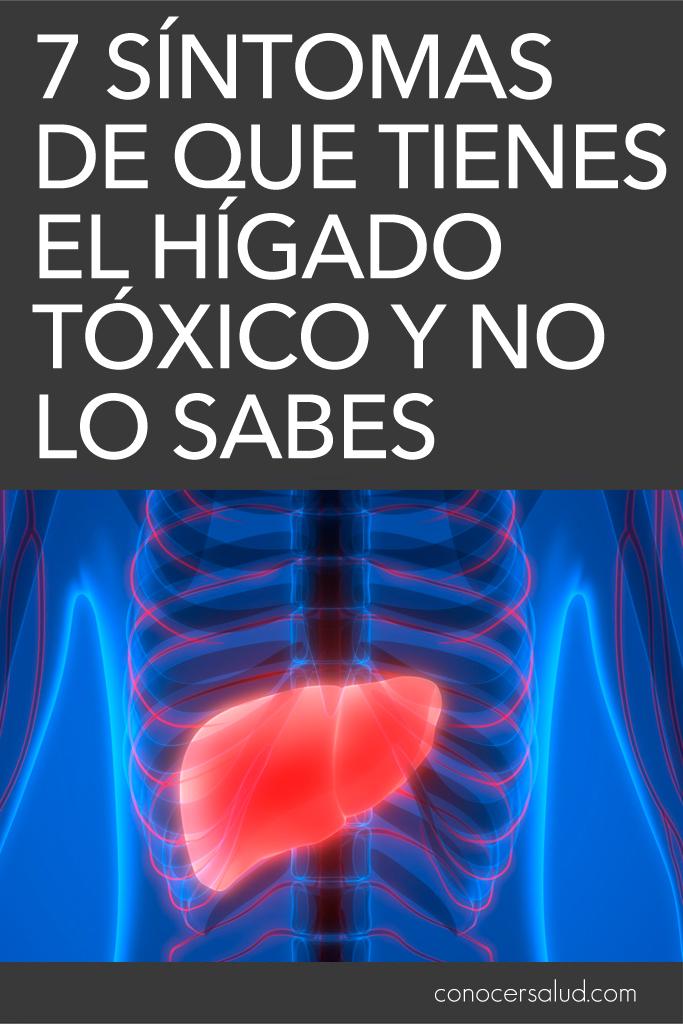 7 síntomas de que tienes el hígado tóxico y no lo sabes