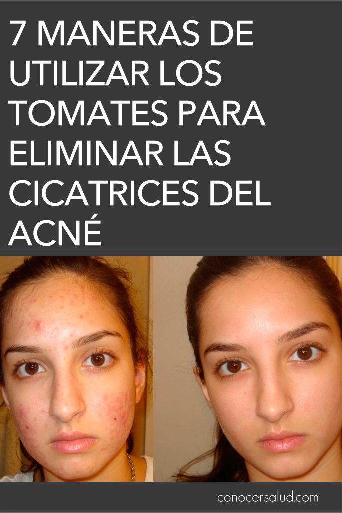 7 maneras de utilizar los tomates para eliminar las cicatrices del acné
