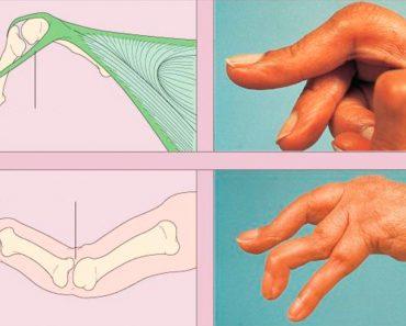 5 alimentos a evitar si usted está sufriendo de artritis reumatoide