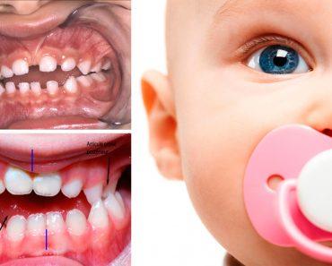 7 Efectos secundarios nocivos del uso de chupetes para bebés