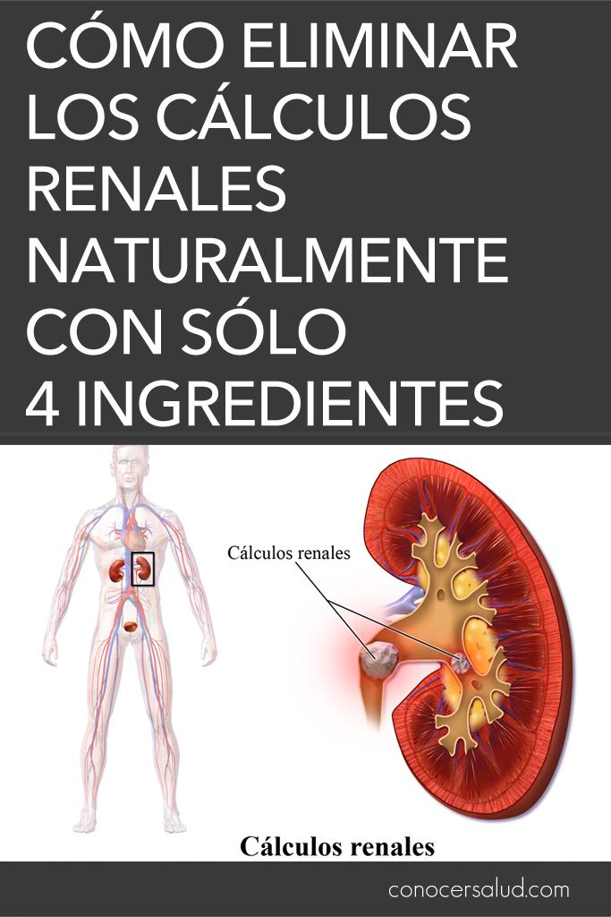 Cómo eliminar los cálculos renales naturalmente con sólo cuatro ingredientes