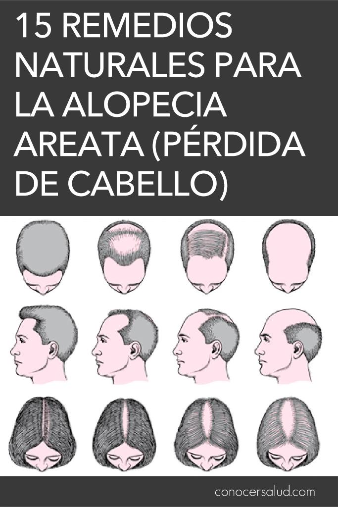 15 Remedios naturales para la alopecia Areata (pérdida de cabello)