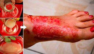 6 Remedios caseros para las quemaduras de la piel que puedes necesitar probar
