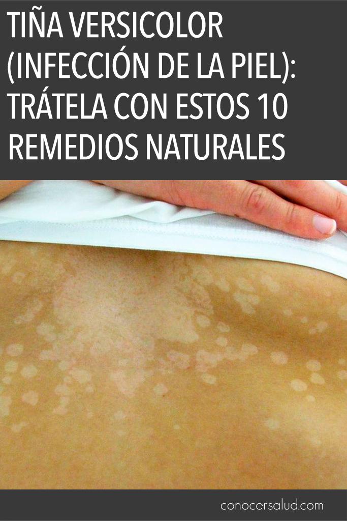 Tiña versicolor (Infección de la Piel): Trátela con estos 10 remedios naturales