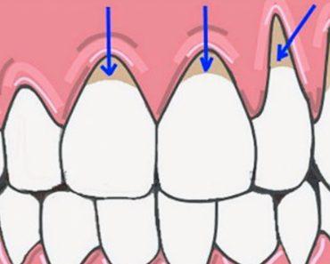 10 Maneras fáciles de sanar naturalmente las encías retraídas