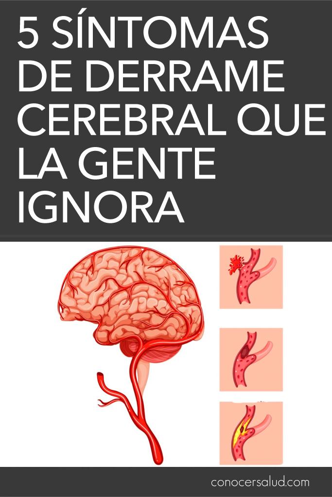 5 síntomas de derrame cerebral que la gente ignora