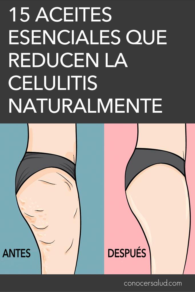 15 aceites esenciales que reducen la celulitis naturalmente