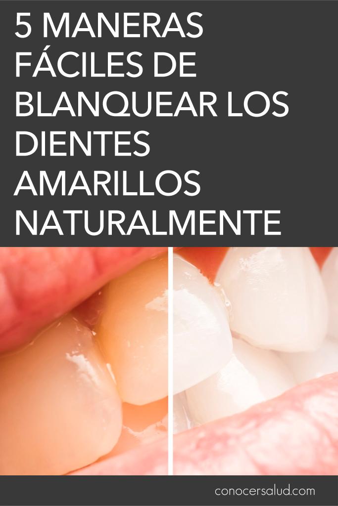 5 maneras fáciles de blanquear los dientes amarillos naturalmente