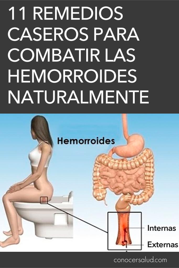 11 Remedios caseros para combatir las hemorroides (almorranas) naturalmente