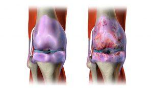 5 remedios naturales para el dolor articular