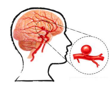Un cirujano cerebral explica las señales de advertencia de un aneurisma que nunca debe ignorar