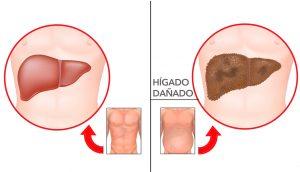 7 Advertencias tempranas de daño hepático que nunca debe ignorar