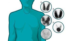 7 Señales de alerta temprana de problemas con la tiroides que nunca debe ignorar