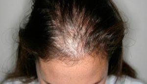 Efluvio Telógeno: 7 maneras naturales de tratar este problema de pérdida de cabello