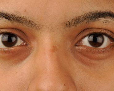 5 Maneras fáciles de quitar los círculos oscuros bajo los ojos (ojeras) naturalmente