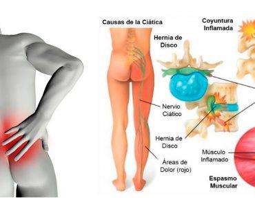 6 tratamientos naturales para el dolor de ciática