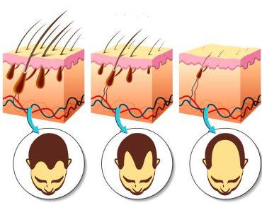 Las 5 vitaminas más importantes para estimular eficazmente el crecimiento del cabello