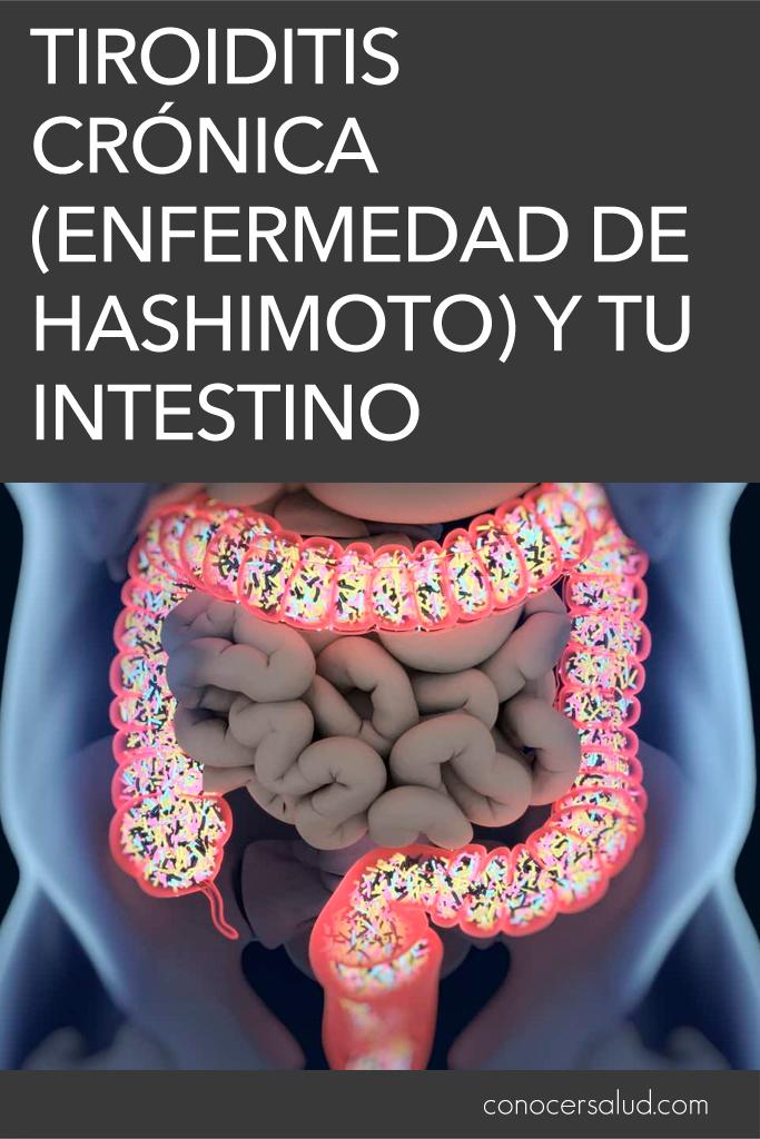 Tiroiditis crónica (enfermedad de Hashimoto) y tu intestino