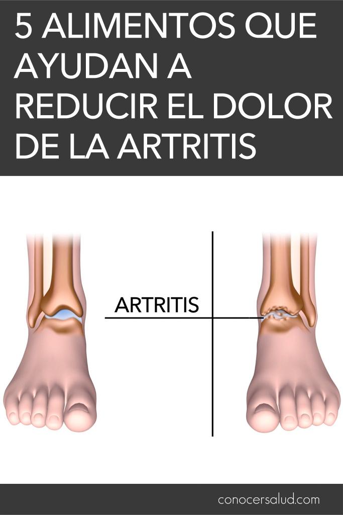5 alimentos que ayudan a reducir el dolor de la artritis