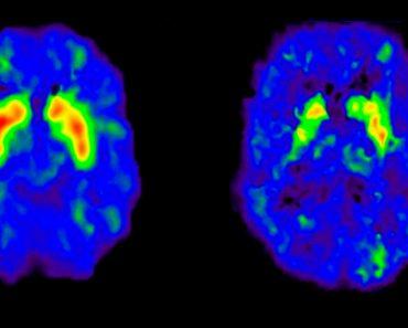 El estrés de la mediana edad podría estar relacionado con el riesgo de demencia tardía