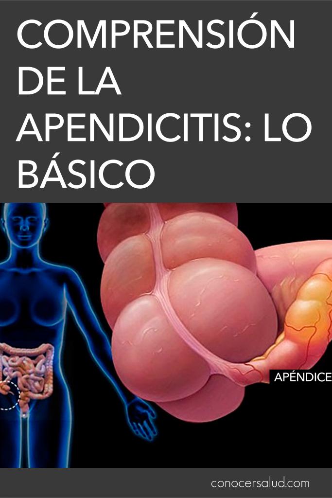 Comprensión de la apendicitis: lo básico