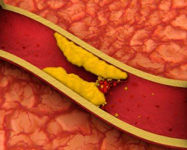 10 consejos para reducir naturalmente el colesterol