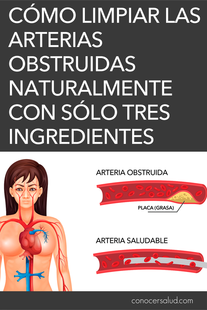 Cómo limpiar las arterias obstruidas naturalmente con sólo tres ingredientes