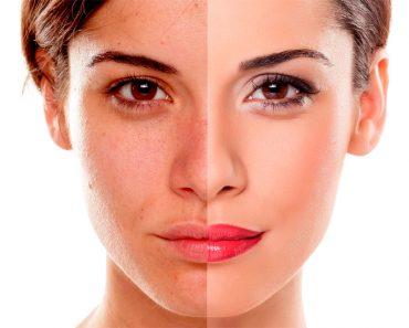 7 Remedios caseros para la hiperpigmentación (manchas oscuras)