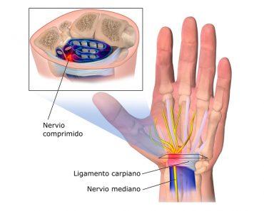 9 remedios naturales para tratar el síndrome del túnel carpiano