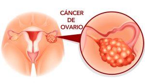 5 Señales de alerta temprana de cáncer de ovario que nunca deben ignorarse