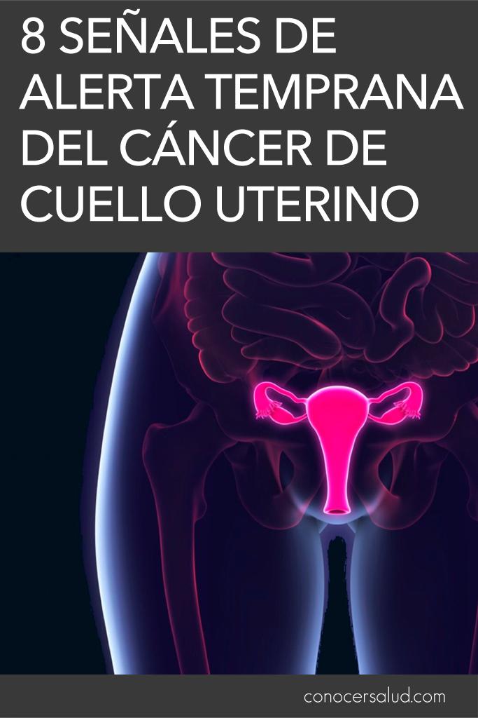 8 Señales de alerta temprana del cáncer de cuello uterino