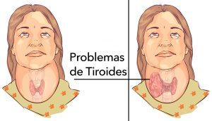 4 maneras fáciles de aliviar naturalmente los problemas de la tiroides