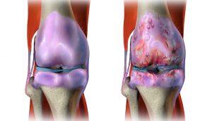 10 aceites esenciales calmantes para aliviar el dolor de la artritis