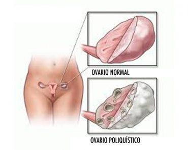 Cómo desayunar, comer y cenar para combatir el síndrome de ovario poliquístico