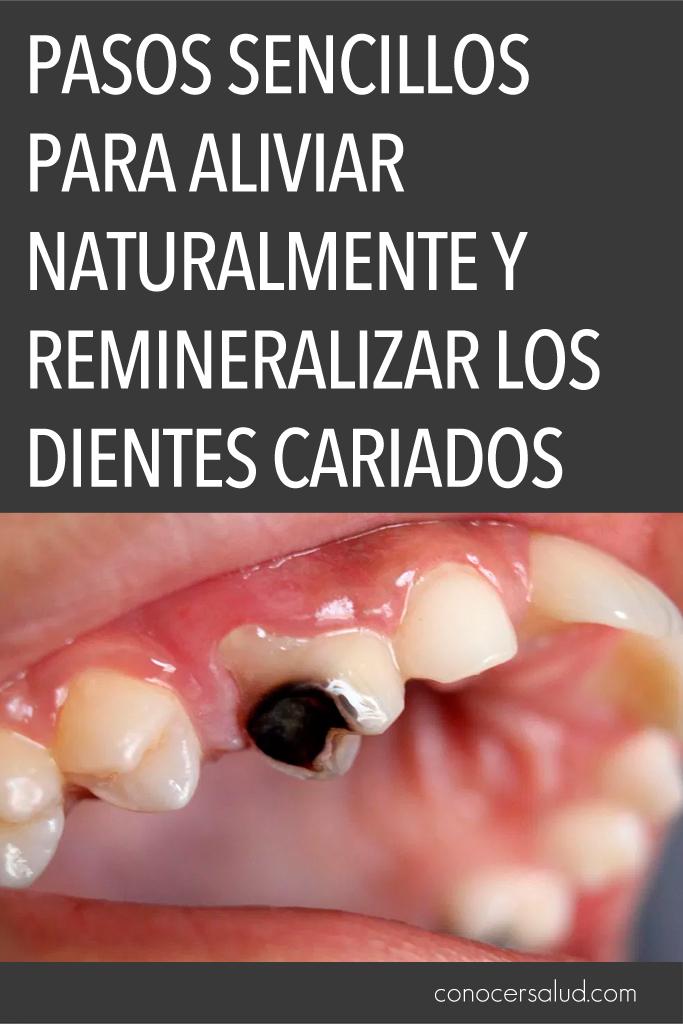 Pasos sencillos para aliviar naturalmente y remineralizar los dientes cariados