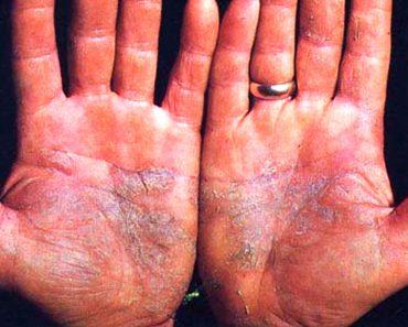 5 beneficios del aceite de ricino en la piel y maneras de utilizarlo para los problemas de la piel