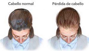 11 razones por las que tu cabello deja de crecer y se vuelve delgado