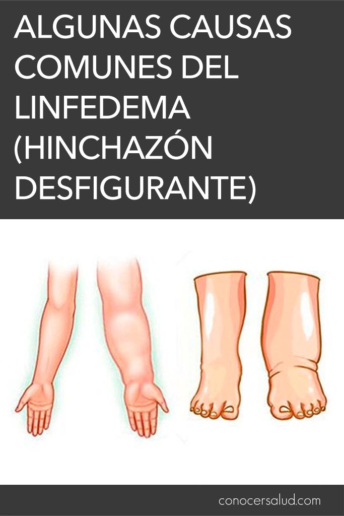 Algunas causas comunes del linfedema (hinchazón desfigurante)