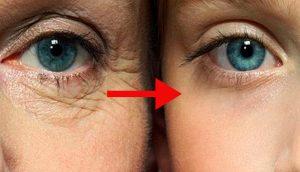 7 cremas caseras antiarrugas para el contorno de ojos fáciles de hacer