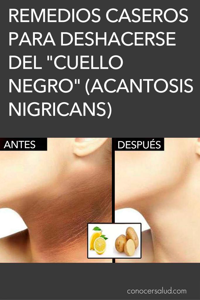 parches de piel oscura diabetes