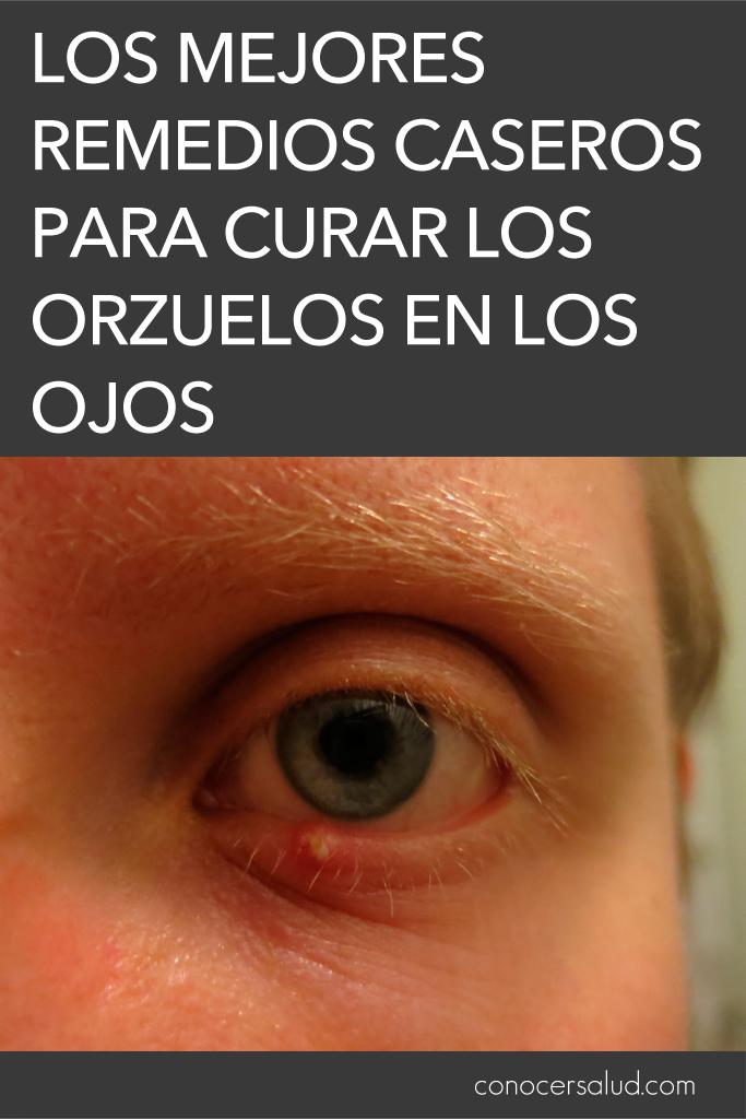 Los mejores remedios caseros para curar los orzuelos en los ojos