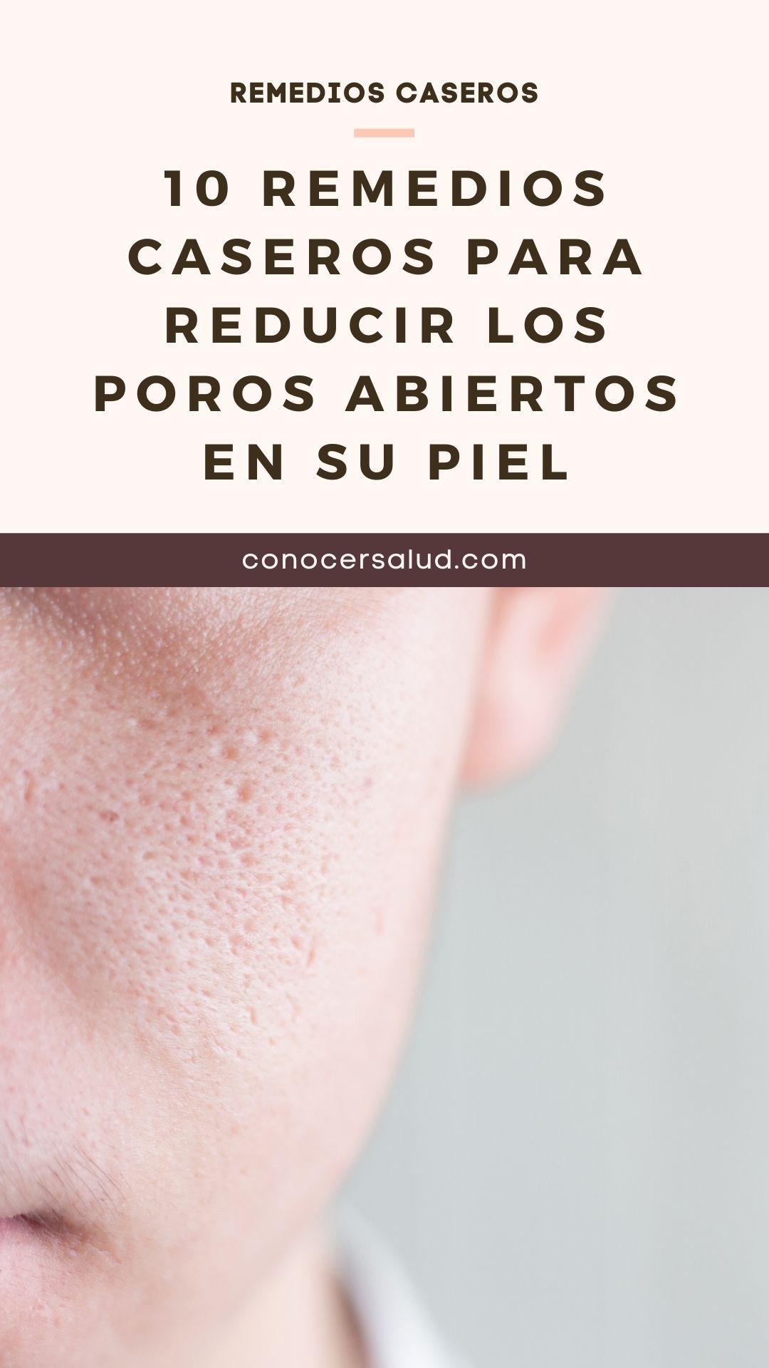 10 Remedios Caseros Para Reducir Los Poros Abiertos En Su Piel