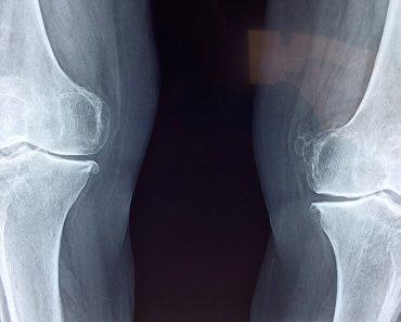 5 maneras con las que usted puede curar su dolor e inflamación articular en casa