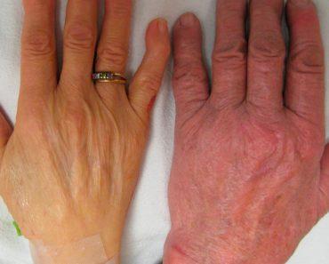 7 señales comunes que pueden indicar deficiencia de vitamina B12