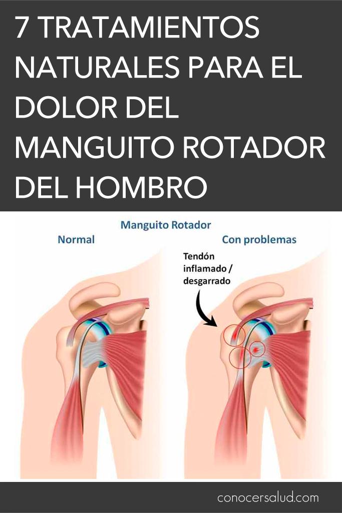 7 tratamientos naturales para el dolor del manguito rotador del hombro
