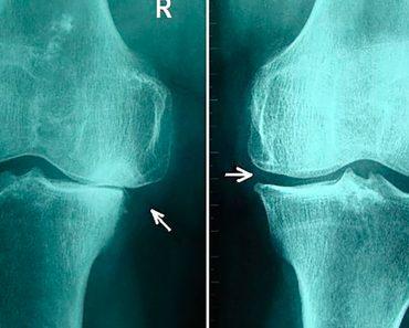 5 Hábitos alimenticios saludables para aliviar la osteoartritis de rodilla
