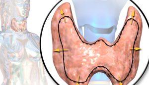 Dieta para el hipotiroidismo: alimentos para despertar una tiroides poco activa
